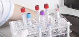 Produits chimiques : l'évaluation des risques pour l'homme peut être améliorée